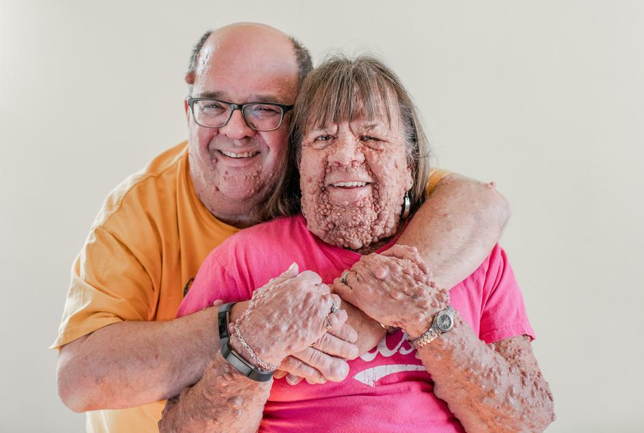 The Husband & Wife With Thousands Of Tumours | Autor: Ryan Jackson