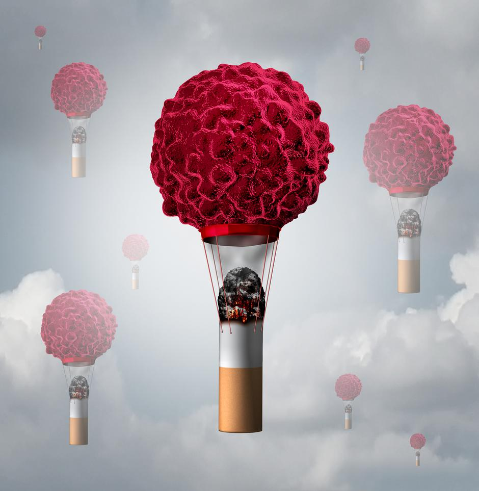 Smoking Cancer | Autor: Dreamstime