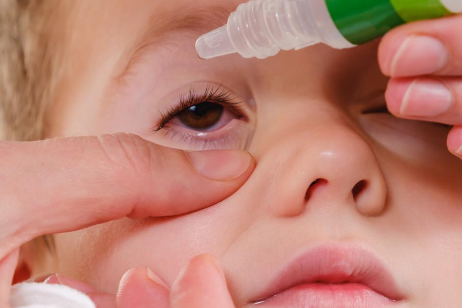 Eye child allergy and conjunctivitis red allergic,  medicine. | Autor: Dreamstime