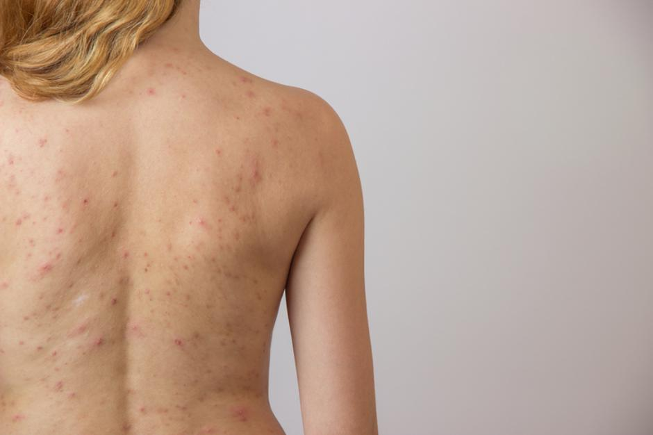 Young girl with acne, with red spots on the back | Autor: Dreamstime