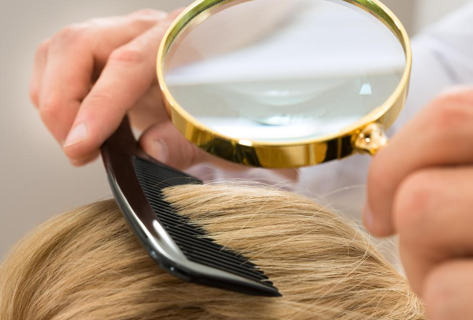 Dermatologist Looking Blonde Hair Through Magnifying Glass | Autor: Andrey Popov