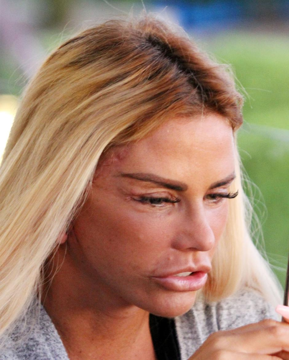 *PREMIUM-EXCLUSIVE* MUST CALL FOR PRICING BEFORE USAGE  - The British Glamour Model Katie Price aka Jordan is in recovery mode showing the scars from the results of her facial procedure out in Turkey | Autor: RYMI, DIVA