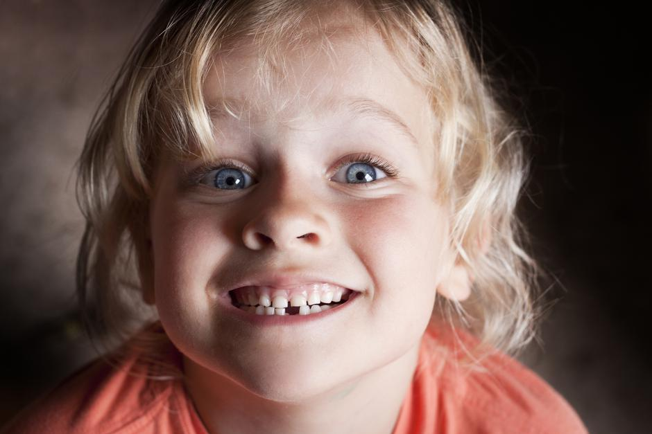Child with missing tooth | Autor: Dreamstime