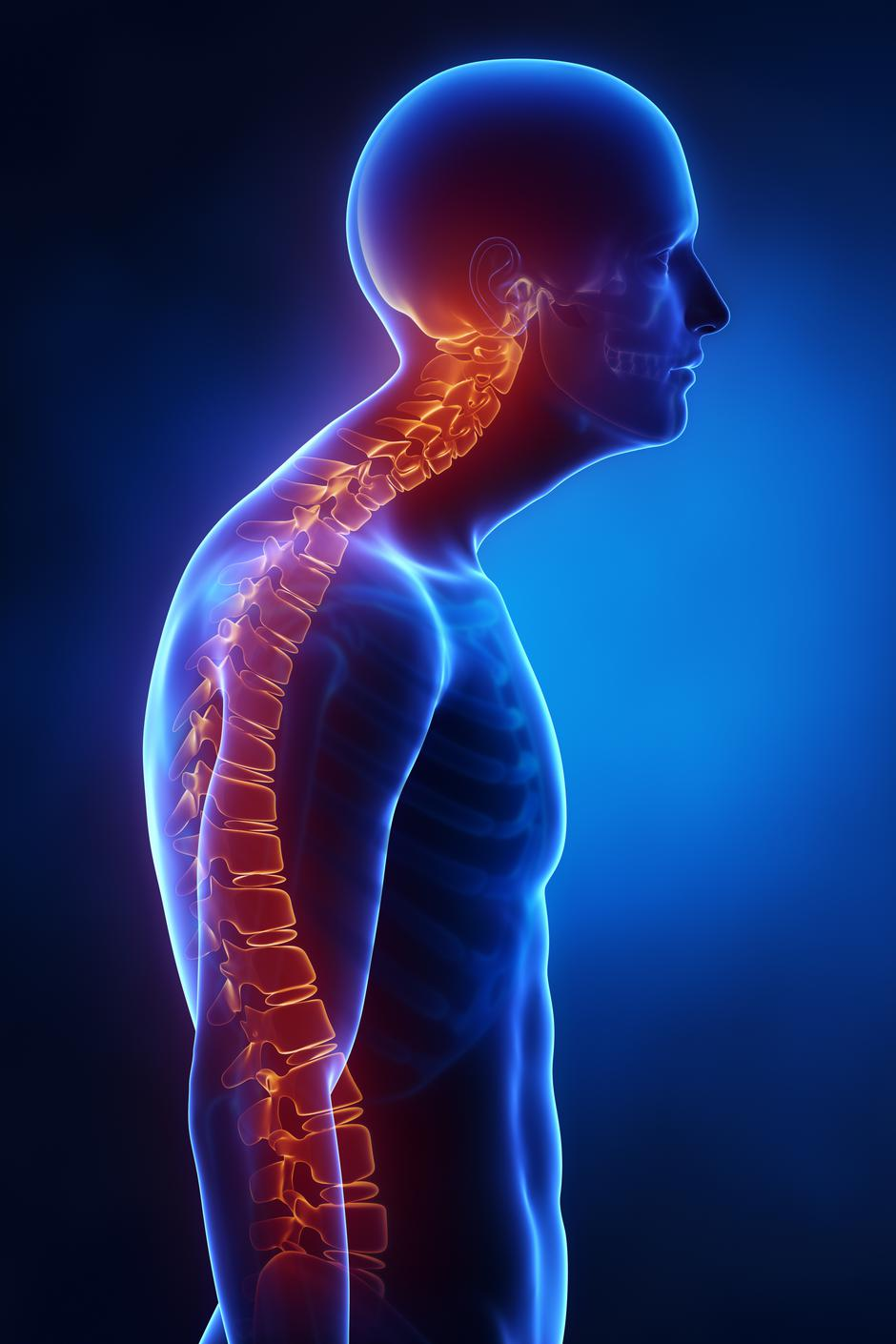 Kyphotic spine lateral view in x-ray | Autor: Thinkstock