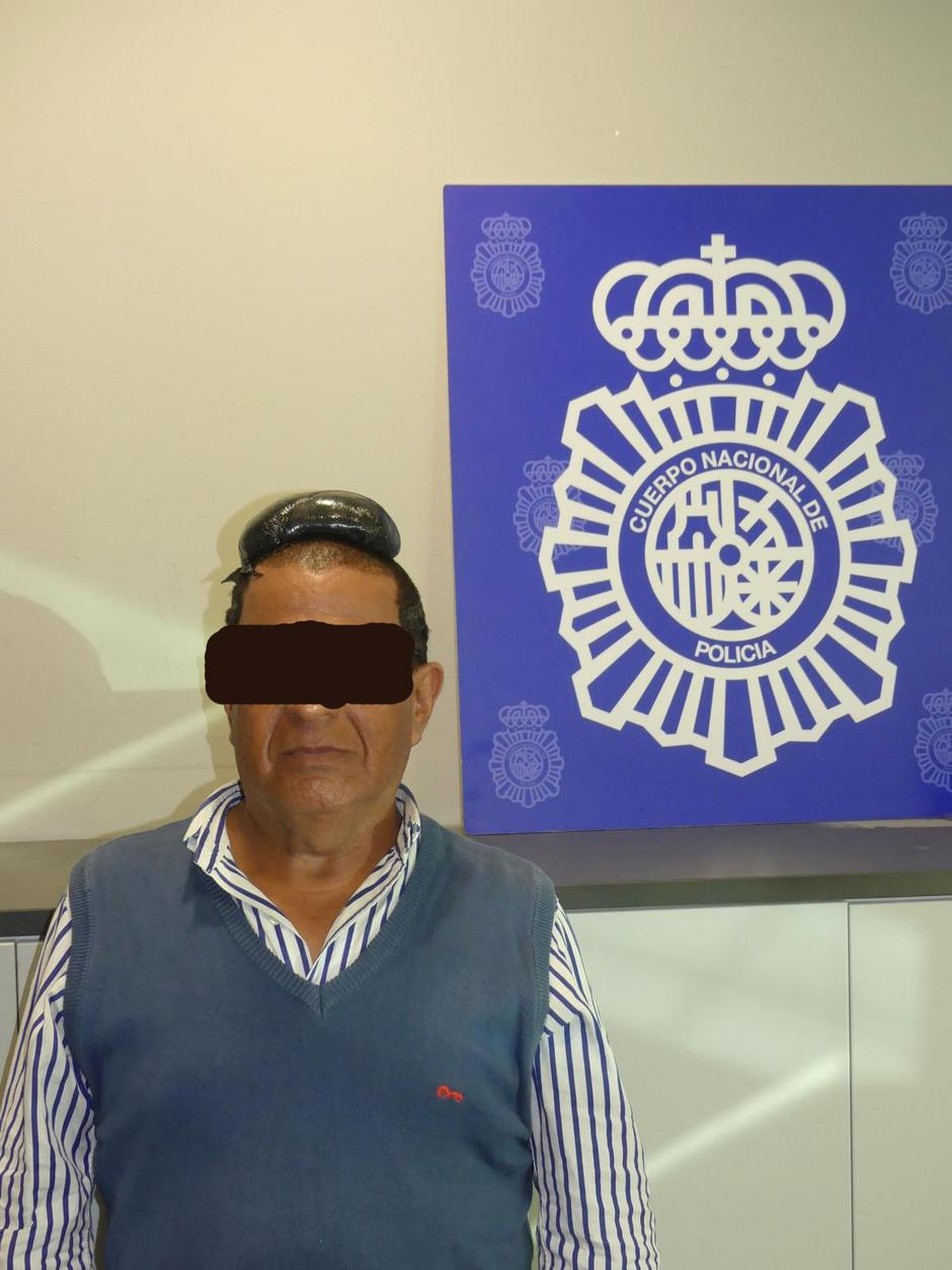 A man poses with a drug package on his head, that he hid under a toupee, after being arrested in Barcelona | Autor: Handout/REUTERS/PIXSELL/REUTERS/PIXSELL
